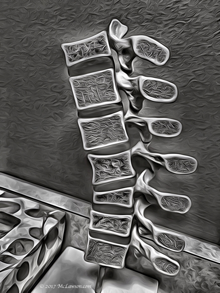 back-bones